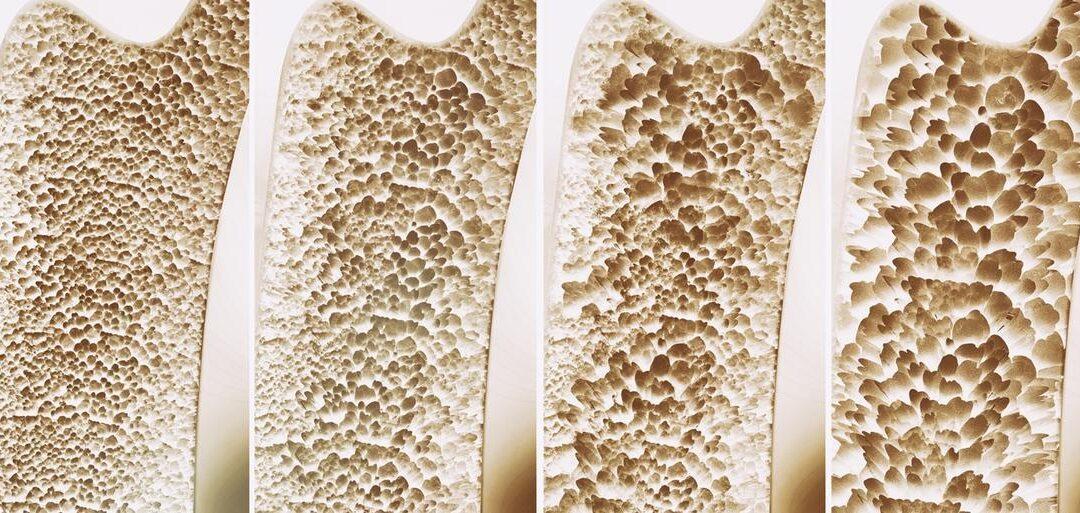 articolo osteoporosi Dott.ssa Elettra Terzani