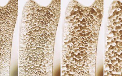 Consigli dietetici per la prevenzione dell'Osteoporosi