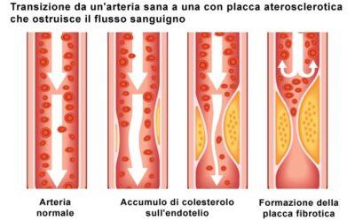 Ipercolesterolemia familiare
